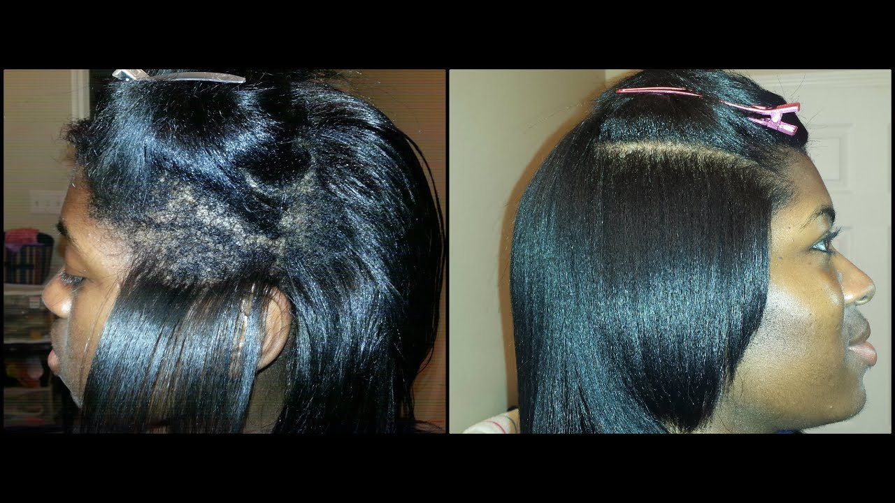 Extreme Breakage Natural Hair