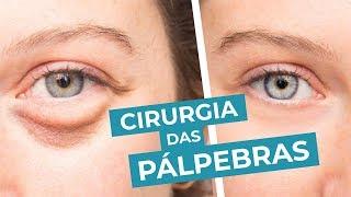 Cirurgia remover da sob os olhos bolsas custo