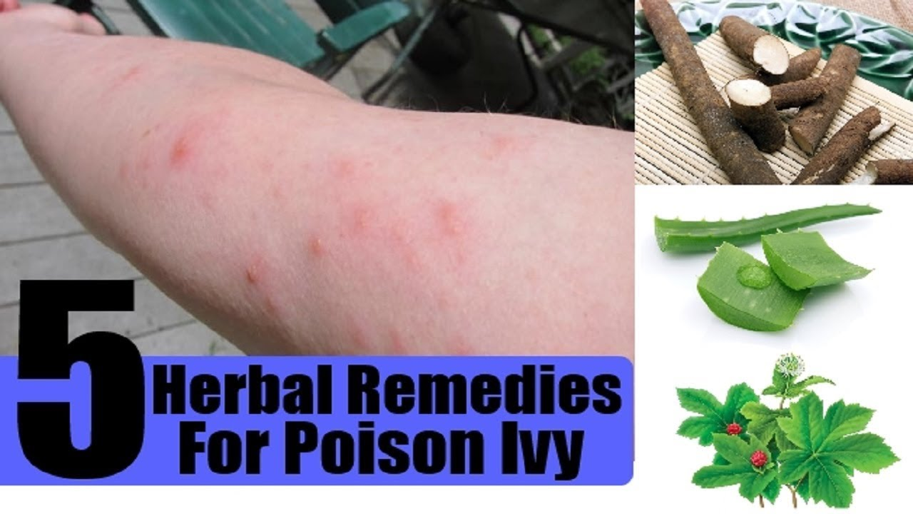 5 Home Remedies For Poison Ivy Youtube