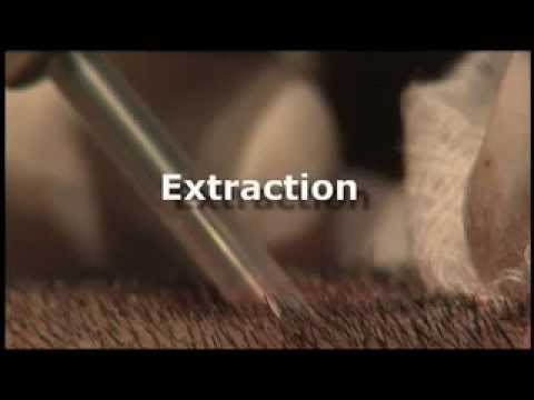 NEO GRAFT Patient Video -Neograft Services at Edgewater & Hoboken Med Spa