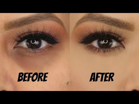 Conceal Dark Circles - NO Creasing, Long Lasting, FULL COVERAGE! (updated 2018)