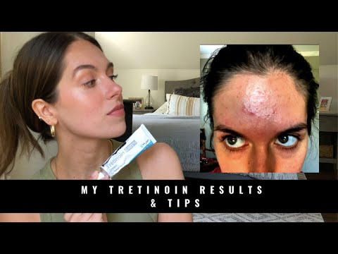 MY TRETINOIN RESULTS