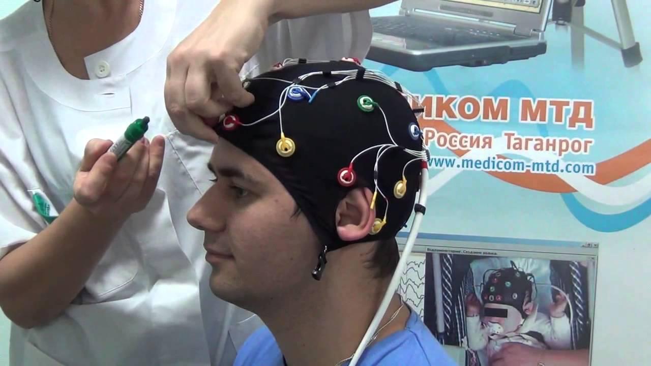 Комплект ЭЭГ-электродов Энцефалан-КЭ для видео ЭЭГ мониторинга .