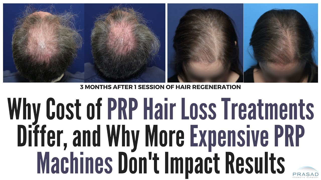 Buy Hair Expensive treatments pictures trends