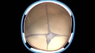 Neurosurgery written board crash course - craniosynostosis part1.