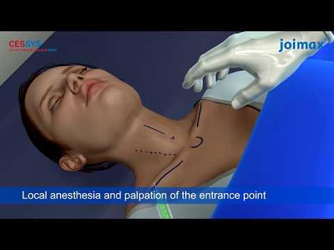 operatie hernie disc laser