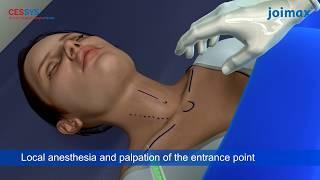 Operatie hernie de disc cervicala - animatie