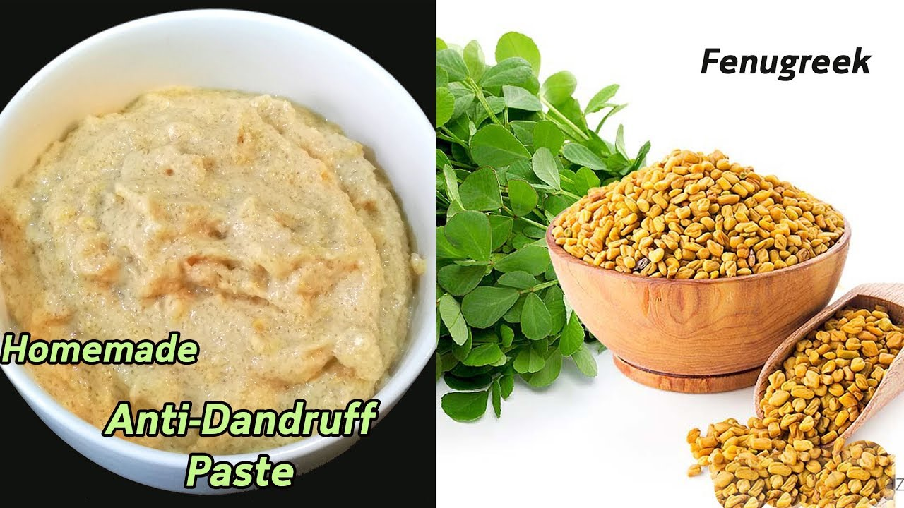 How to Get Rid of Dandruff || Homemade  Natural Treatment || Miracle Cure For Dandruff