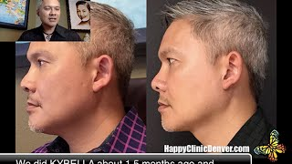 Kybella Before and After at Happy Clinic Denver