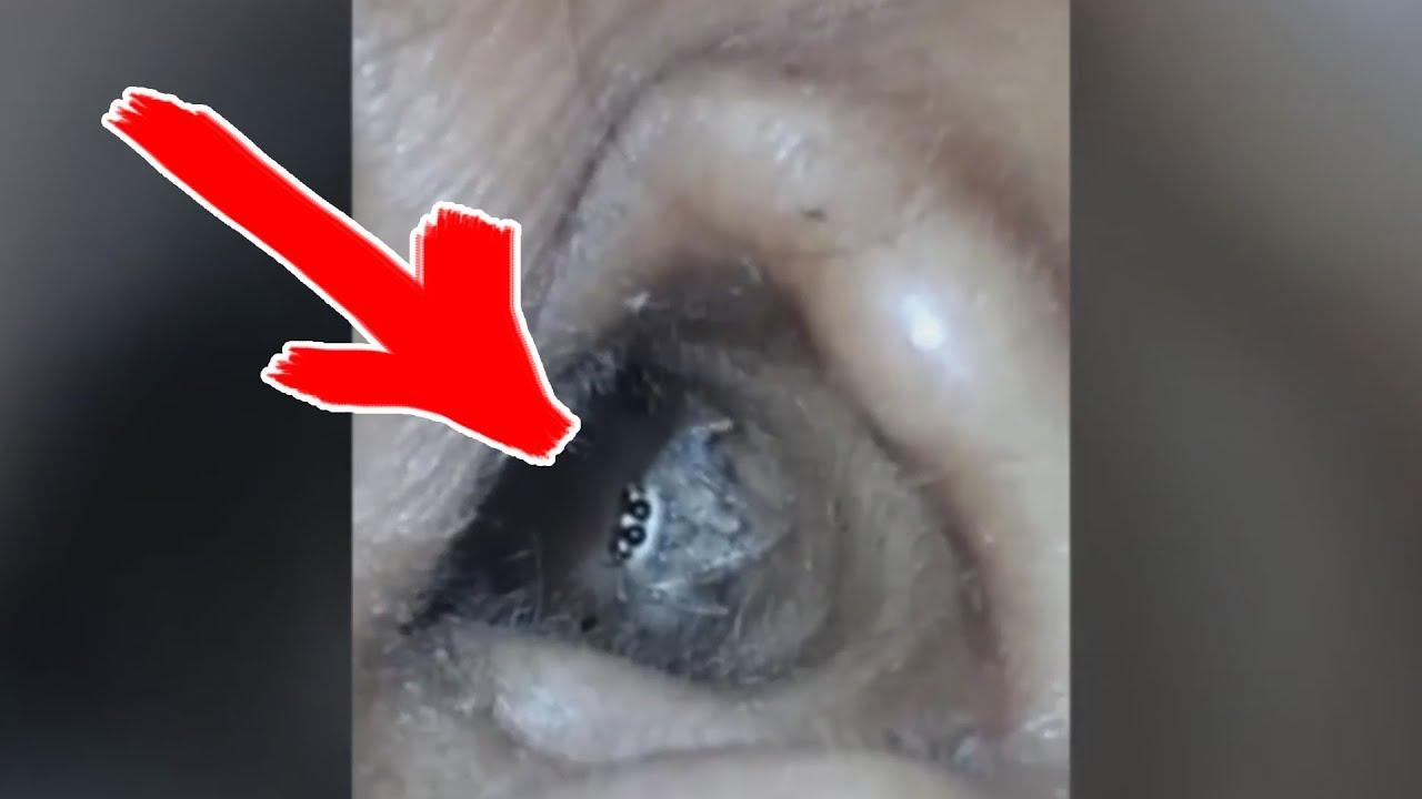 Вот Почему Уши Нужно Мыть Чаще «Если только Смотреть Всякую Хрень»