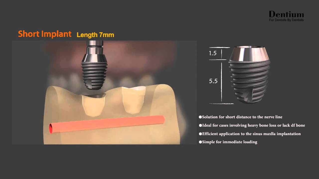 Short implant - YouTube