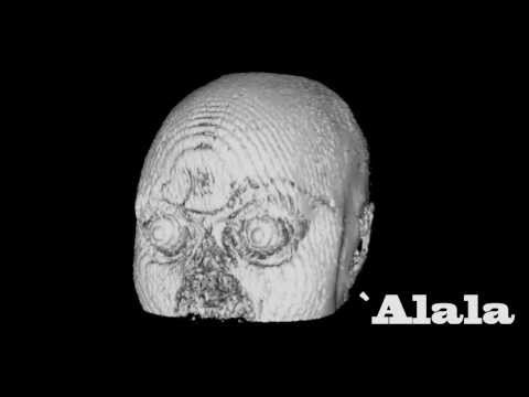 MRi Art #6 -