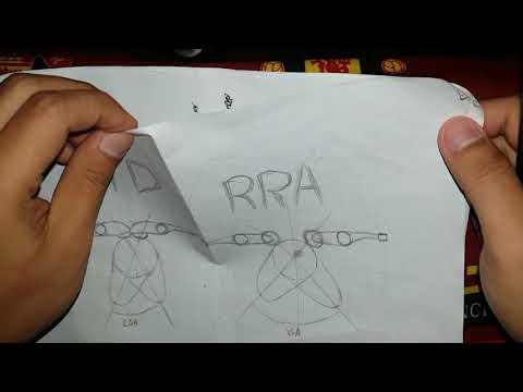 Kenapa Temlar Roler/RRA Tidak Bisa Dipasang Di NOKEN AS STD?