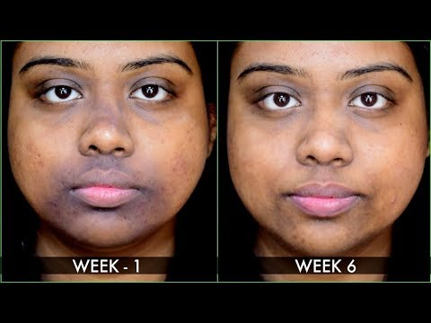 HOW I GOT RID OF PIGMENTATION / SUN TAN AROUND MOUTH WITH DIY FACE PACK | 100% RESULT WITHIN 10 DAYS