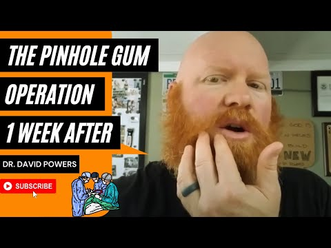 The Pinhole Gum Operation- 1 Week After