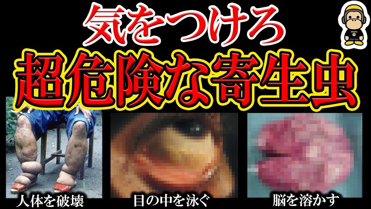【閲覧注意】人体を破壊しまくる恐怖の寄生虫5選