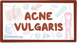 hqdefault - Is Acne Vulgaris Chronic