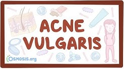hqdefault - Pathophysiology Of Acne Vulgaris