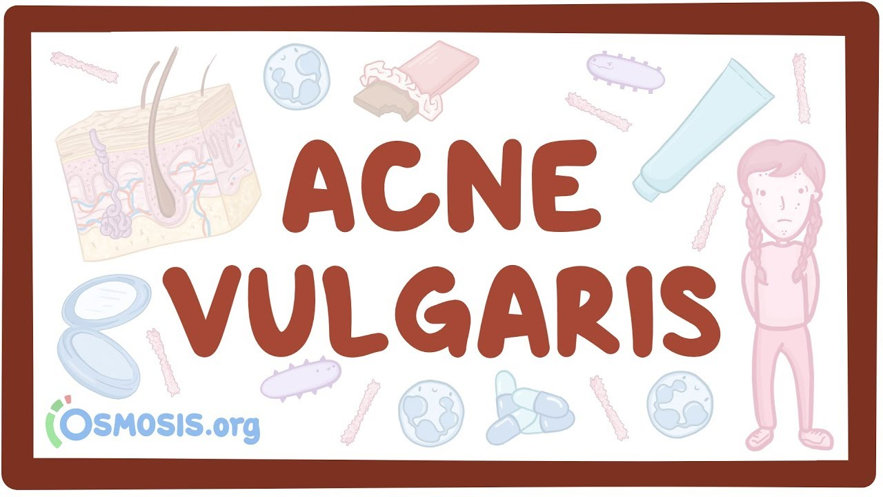 Acne vulgaris - causes, symptoms, diagnosis, treatment, pathology