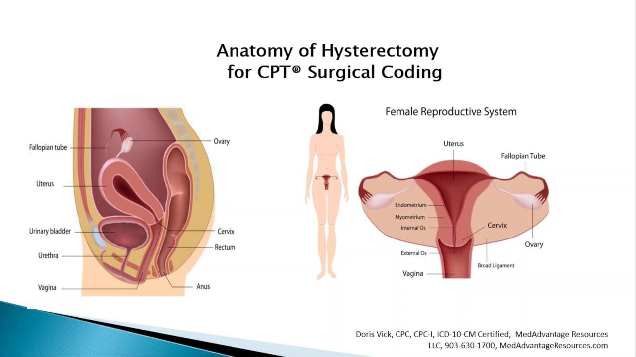 Free Medical Coding Training Anatomy Of Hysterectomy Surgical