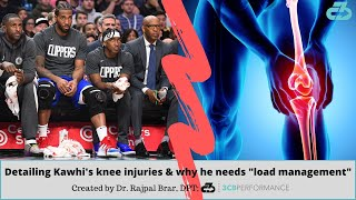 "Detailing Kawhi Leonard's knee injuries and why he needs ""load management"""