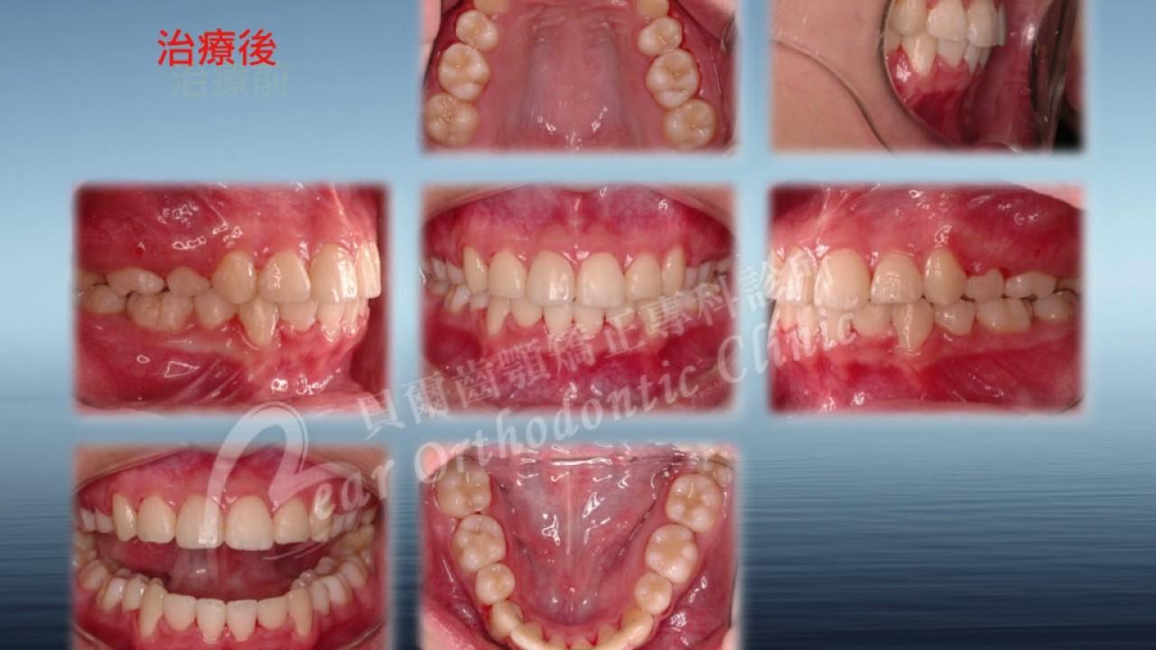 暴牙拔牙骨釘牙齒矯正--bimaxillary protrusion orthodontic tx with bone mini-screw - YouTube