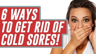 How to Get Rid of Cold Sores Fast - Home Remedies for Cold Sores Symptoms