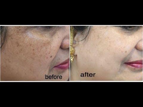 beautician secret - fastest way to disappear dark spots, sun tan, brown spots & pigmentation