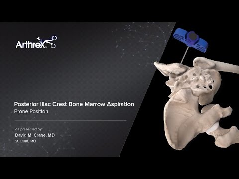 Posterior Iliac Crest Bone Marrow Aspiration - Prone Position