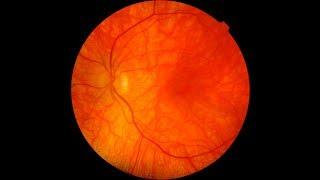 Venas retinianas las tortuosos de síntomas