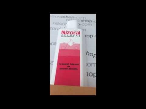 Nizoral Shampoo Honest Customer Review