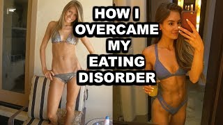 How I Overcame My Eating Disorder