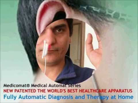 Ear Acupuncture Chart Free - YouTube
