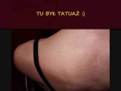 Całkowicie Usunięty Tatuaż Laser Rubinowy Sinon Ctl Wrocław