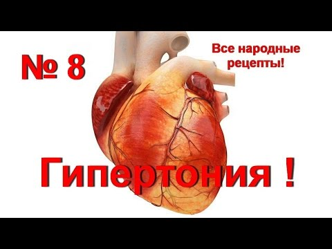 Артериальная гипертония (гипертоническая болезнь