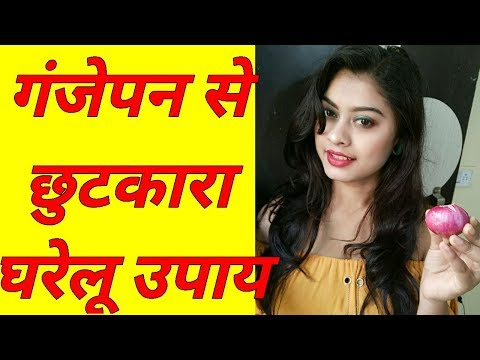 Onion Juice for Hair Growth at Home (Hindi) | Home Remedy For Fast Hair Growth With Onion Juice