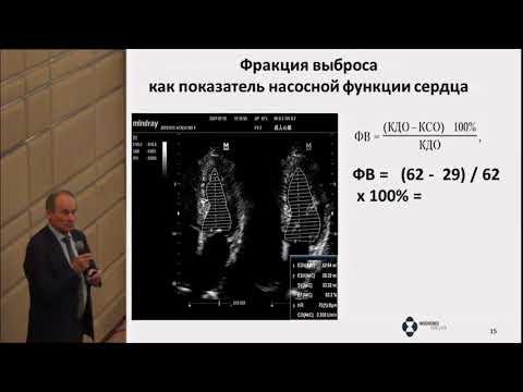 Васюк Ю.А., Сердце и сахарный диабет: секреты эхокардиографии для эндокринологов.