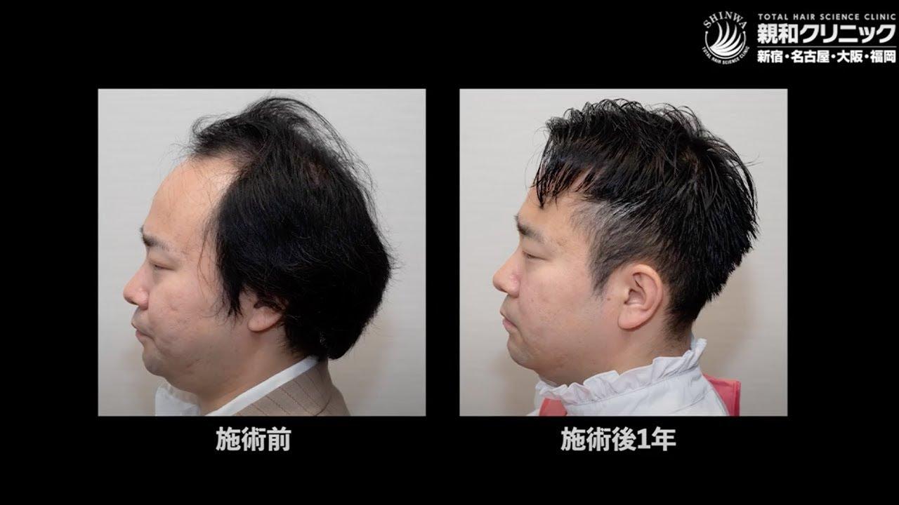 自毛植毛手術から12ヶ月後、生え際・前頭部・頭頂部に2000株移植「魔法を使ったみたい。人生が180度変わった」親和クリニック【 新宿・名古屋・大阪・福岡 】
