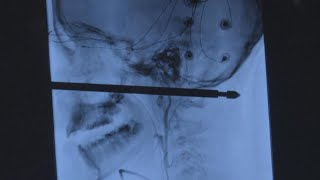 Baixar 10-Year-Old Missouri Boy Miraculously Survives After He's Impaled by Meat Skewer
