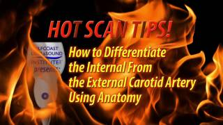 Hot Tip-How to Differentiate the Internal from the  External Carotid Artery