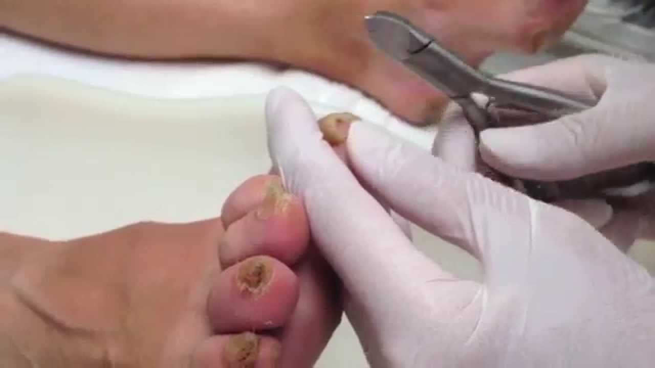 Thick Toenails Treatment: Should You Go To Doctor ?