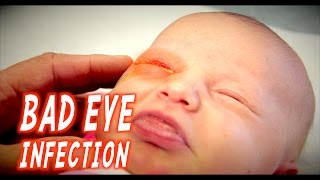 BAD EYE INFECTION (Infant) | Dr. Paul