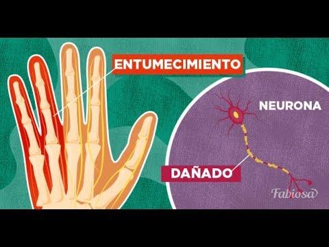 7 señales que indican la existencia de algún daño nervioso y sus causas más comunes