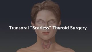 Transoral 'Scarless' Thyroid Surgery Animation