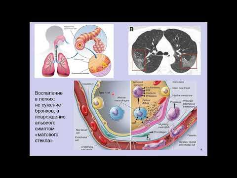 Дубынин В. А. - Физиология иммунитета - Цитокиновый шторм и коронавирус