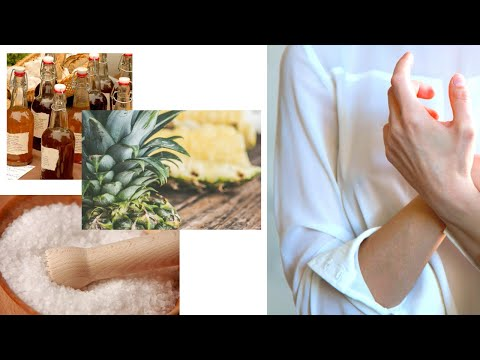 arthritis---5-home-remedies-(natural-pain-relief)