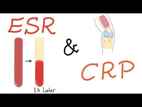 ESR And CRP