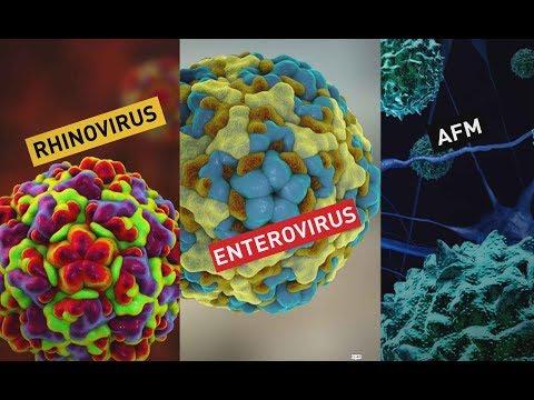 What is the polio-like illness acute flaccid myelitis?