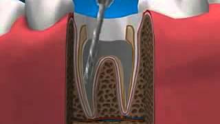 Видео Стоматология