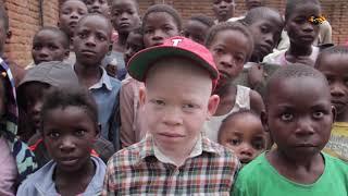 Här kan albinism straffas med döden
